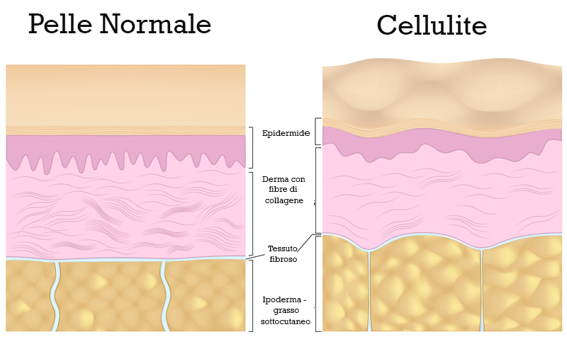 pelle-normale-pelle-con-cellulite
